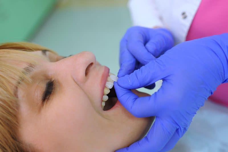 dental patient undergoing porcelain veneers procedure