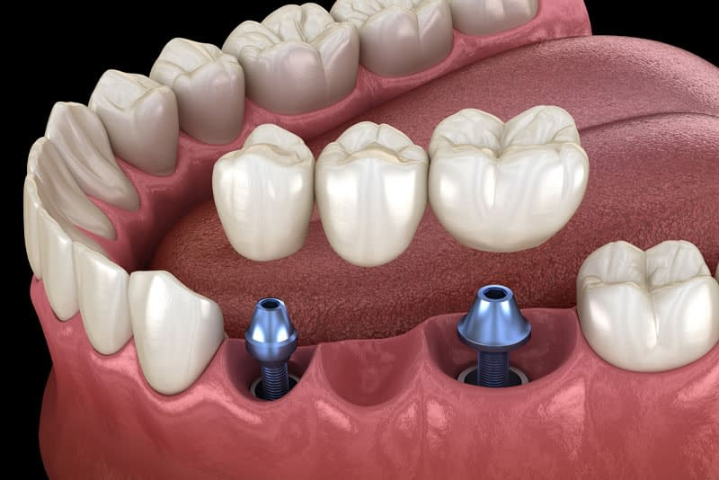 dental implant crown model