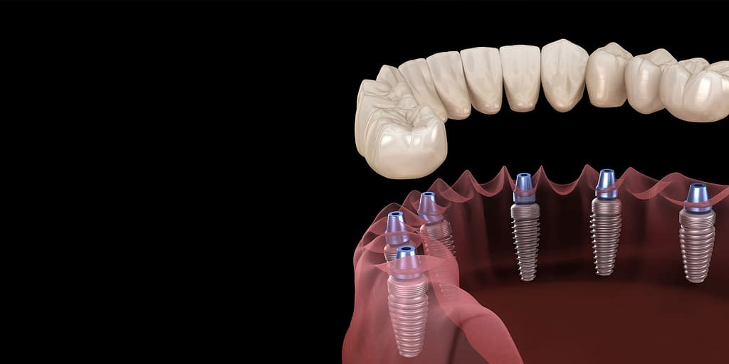 full mouth dental implant model