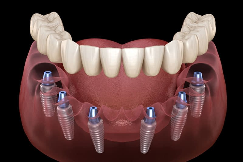 full mouth dental implants model
