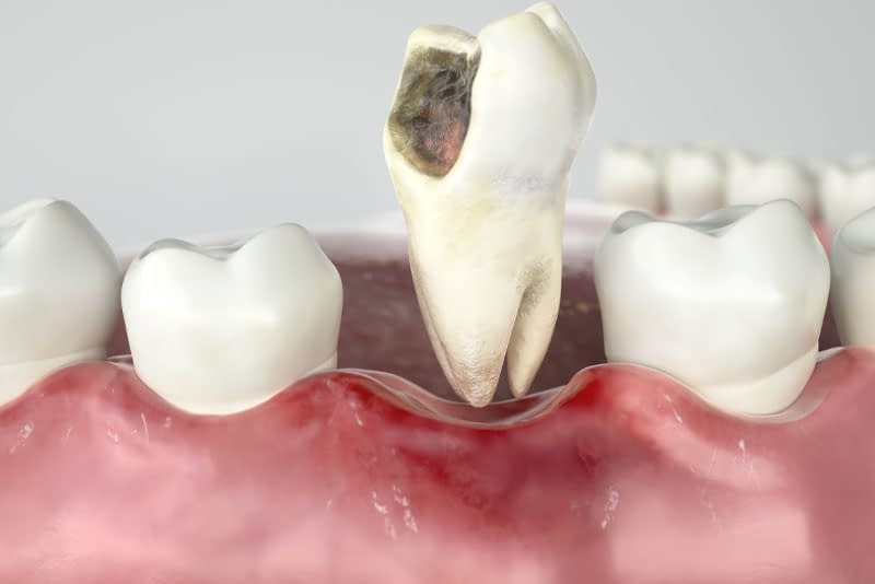 damaged tooth graphic