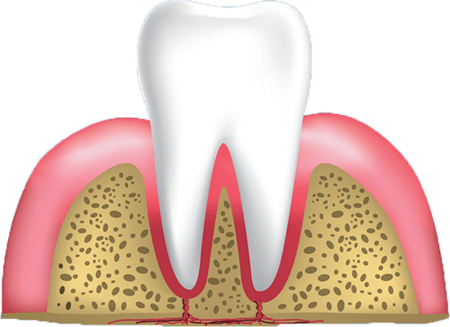 healthy gums graphic