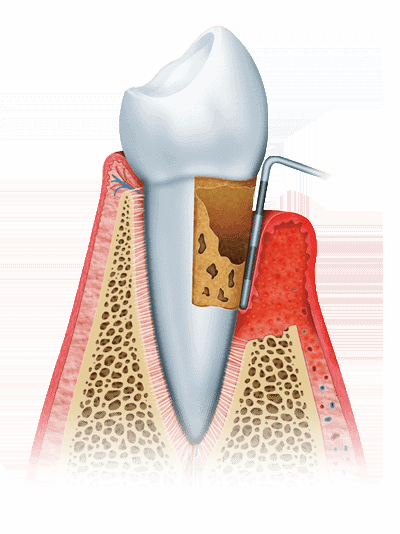 advanced periodontitis graphic