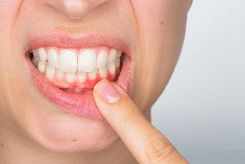 dental patient in need of periodotnal treatment