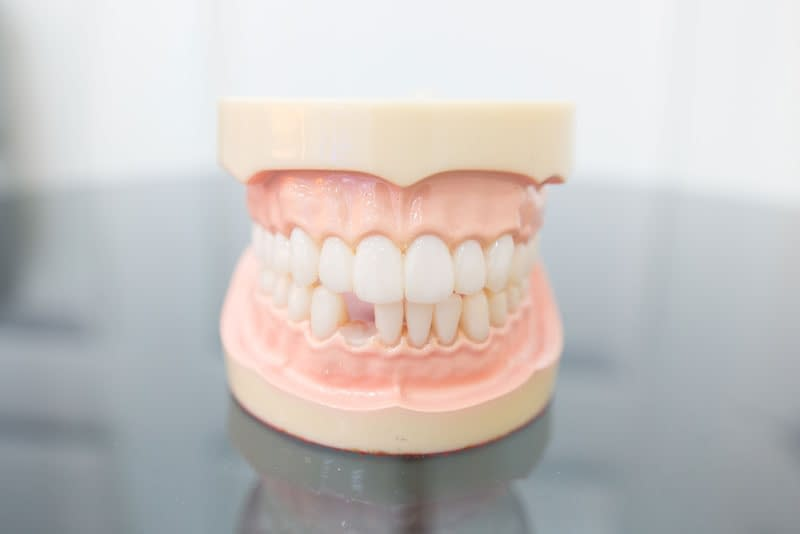 missing tooth model
